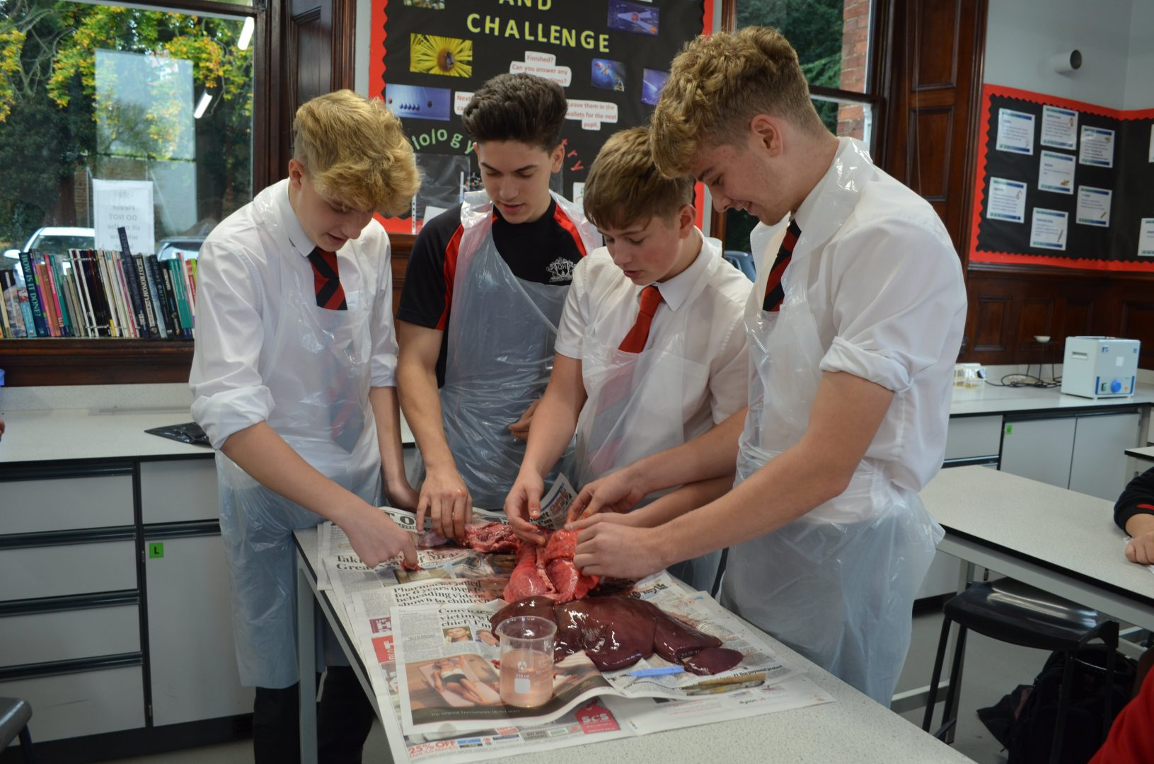 Heart and Lung Dissection with Q11